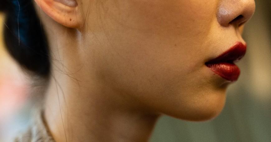 risultato filler labbra