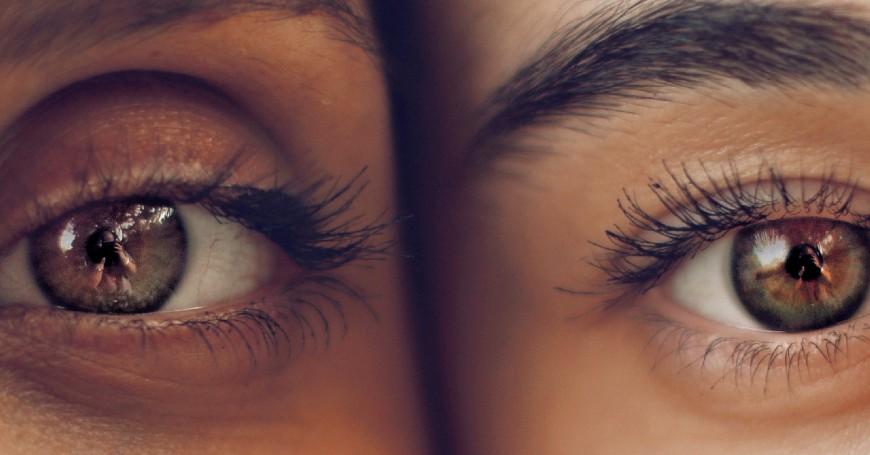 filler occhi prima e dopo