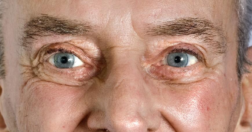 filler contorno occhi